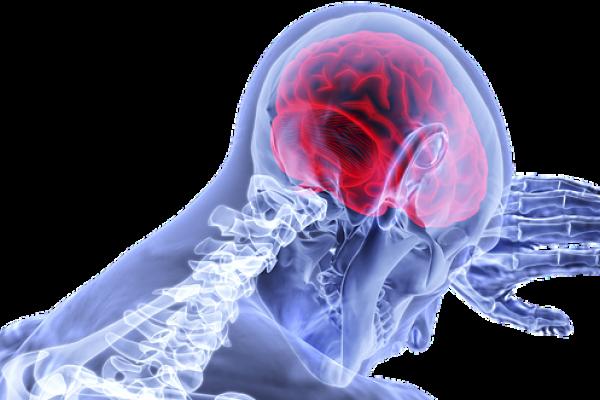 cérebro, sensibilidade, dor